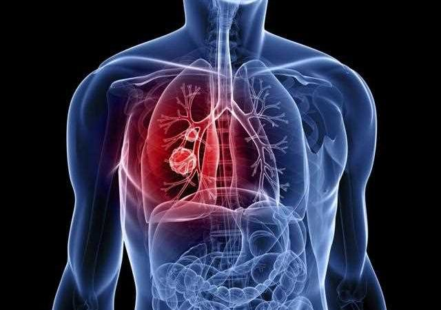 Lung Cancer and the Symptoms